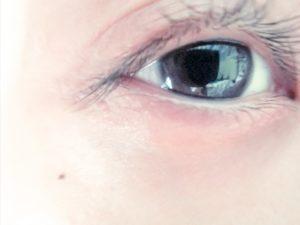 目 腫れ すぐ た 治す あと の 泣い